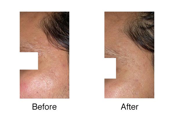 Uncategorized Dr Nina Madnani Haircare routine dr geeta patel skin diaries. uncategorized dr nina madnani